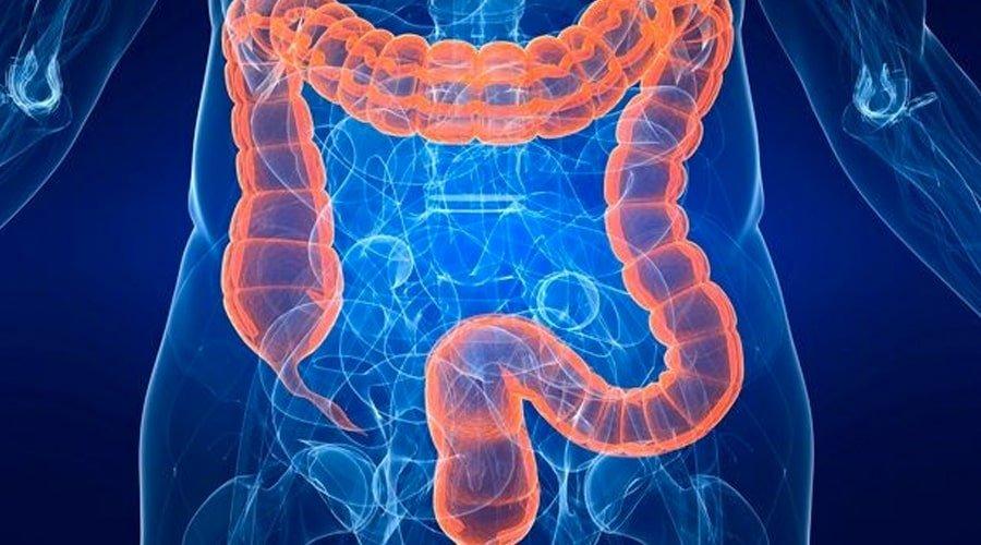 Problemas de colon kéfir